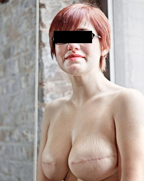 бабы с ампутированной грудью фото